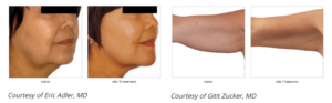 Skin Tightening Before And After 3 Vein And Laser Institute
