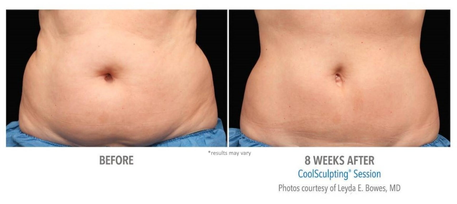 How to Guarantee the Best CoolSculpting Results   Vein and Laser ...