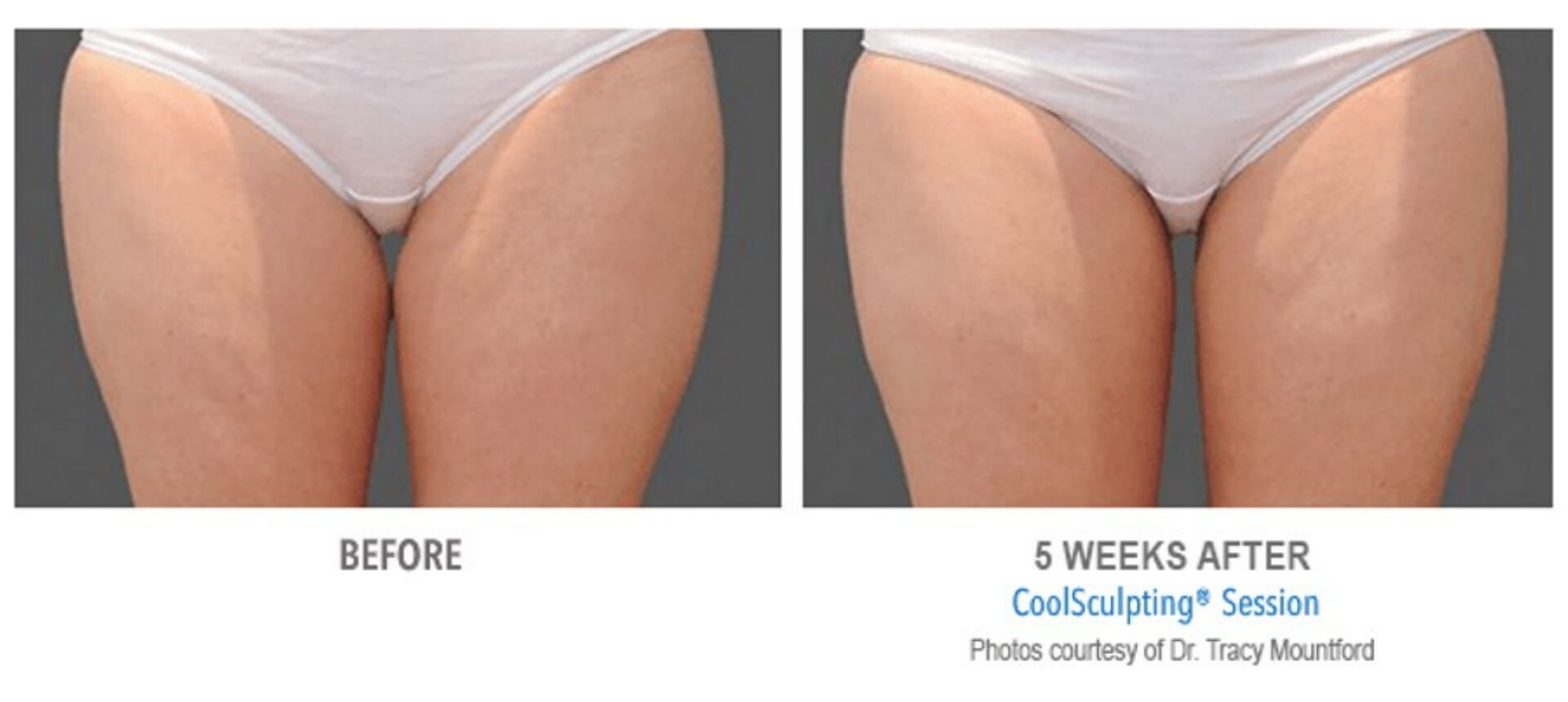 coolsculpting_5-before-and-after