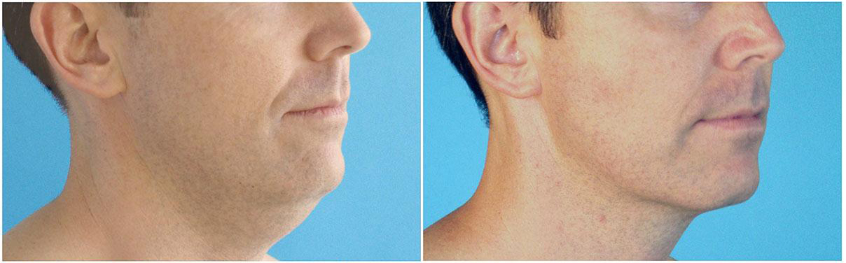 before-and-after-chin-liposuction
