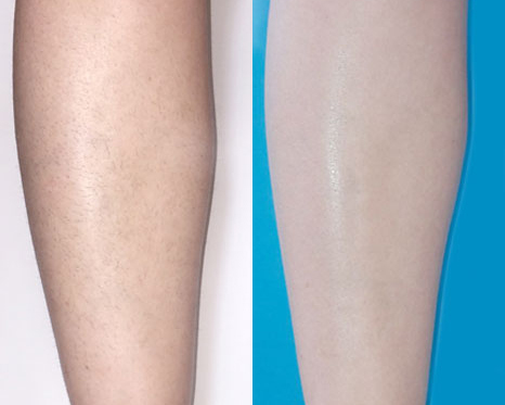 before-and-after-venus-velocity-hair-removal