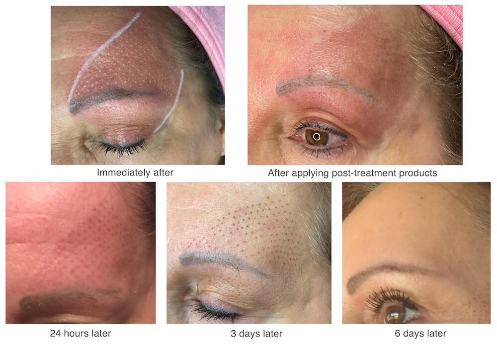 plaxel-healing-process
